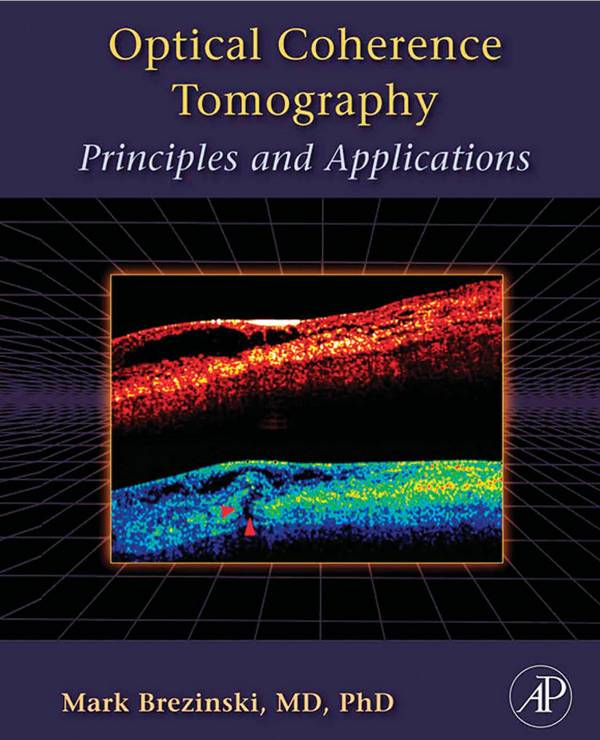 Optical Coherence Tomography – Principles and Applications